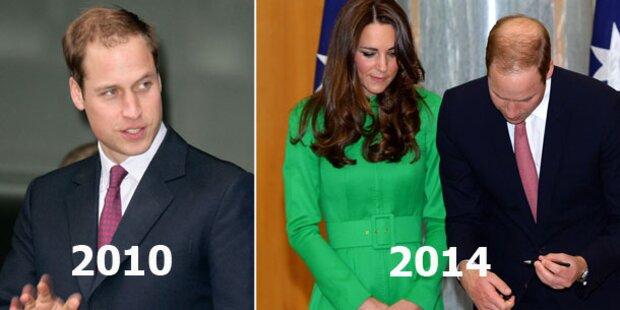 Prinz William: Kahl wegen Kate?