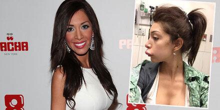 Farrah Abraham: Nach Beauty-OP im Spital