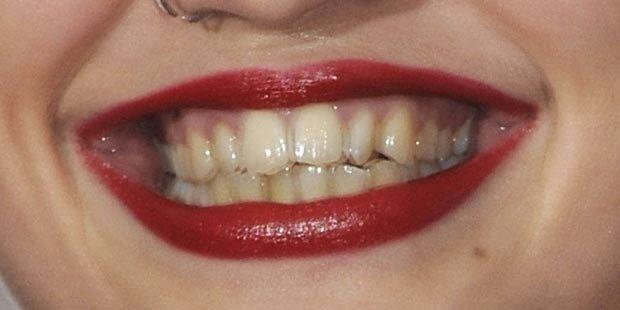 Wem gehören diese gelben Zähne?