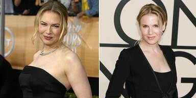 Renée: Beauty-OPs aus Angst vorm Älterwerden