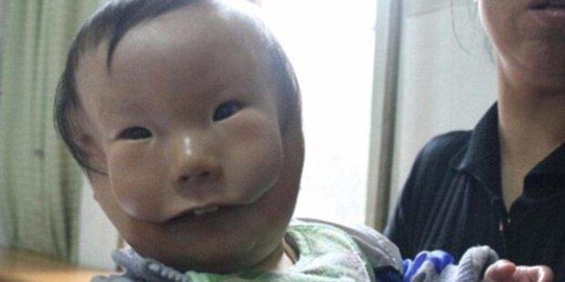 """""""Masken""""-Baby rührt die ganze Welt"""
