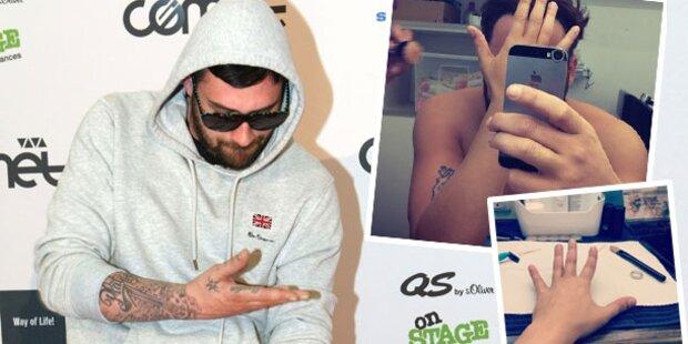Sido macht Schluss mit seinen Tattoos