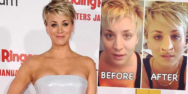 Kaley Cuoco: So lacht sie über Beauty-OP