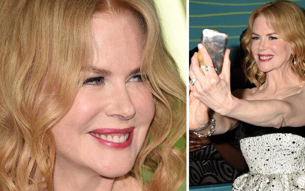 Nicole Kidmans gruselige Frost-Mimik