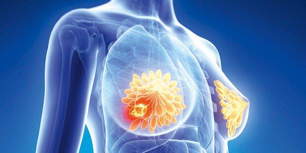 Was Sie über Brustkrebs wissen sollten