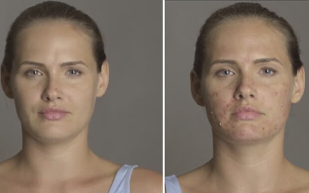 Model lässt sich Akne schminken