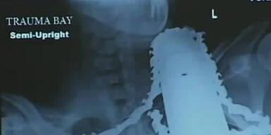 Kettensäge steckt im Hals: Unfall überlebt