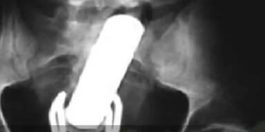 Mann stirbt durch seinen Vibrator