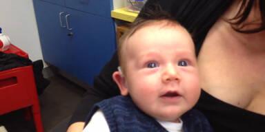 Baby bekommt Hörgerät