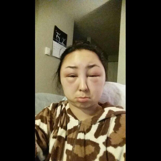Allergische Reaktion Nach Haarefärben