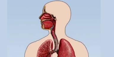 So verstopft der Feinstaub die Lunge