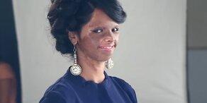 Säureopfer modelt für Beauty-Kampagne