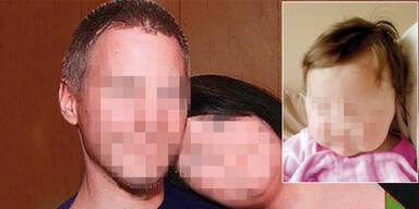Verbrühte Leonie (2): Anklage gegen Eltern