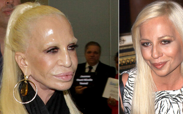 Donatella Versace schockt mit Wachs-Gesicht