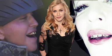 Madonna's neues Gold-Gebiss