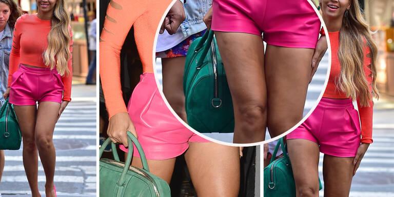 Mini-Shorts trotz Cellulite