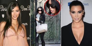 Kim Kardashian: Das hat sie alles machen lassen