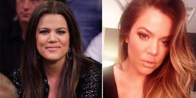 Khloe Kardashian: War sie etwa beim Beauty-Doc?