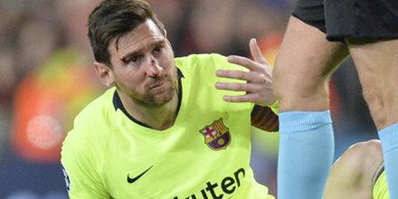 Barca gewinnt 1:0, Blutspiel für Messi