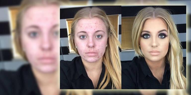 Wegen Akne: Internet verspottete diese Frau