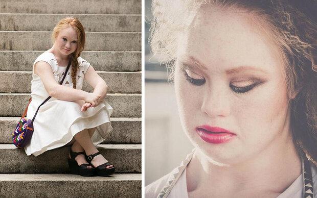 Model mit Down-Syndrom bei Fashion Week