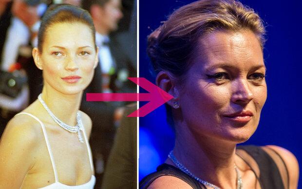 Darum ist Kate Moss so stark gealtert