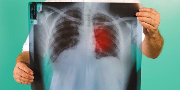 Lungenkrebs - Erfolge bei einzelnen Patientengruppen