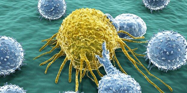 Krebs in 25,4 Prozent Hauptursache bei Todesfällen