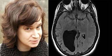 Diese Frau lebt seit 34 Jahren mit Loch im Hirn