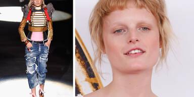 Hanne Gaby Odiele ist intersexuell