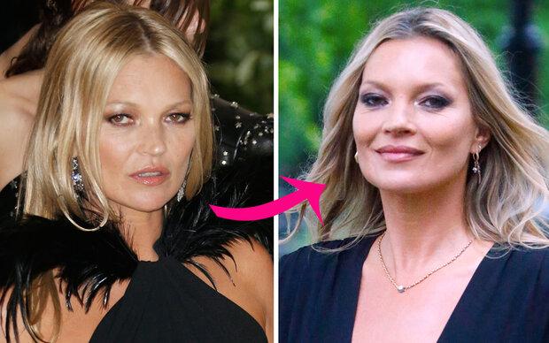 Hat Kate Moss nachhelfen lassen?
