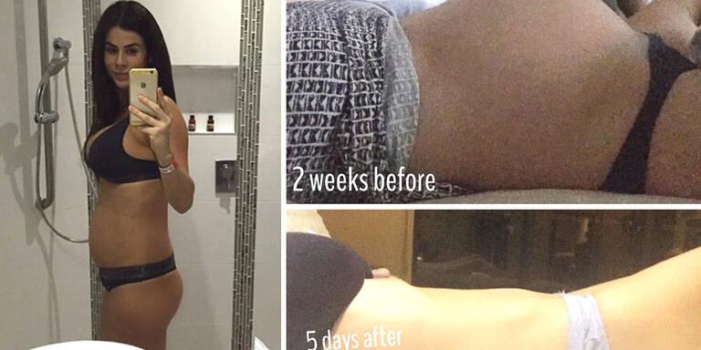 Sexy Bauch wenige Tage nach Zwillingsgeburt