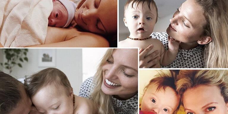 Baby mit Trisomie 21 bekommt Model-Deal