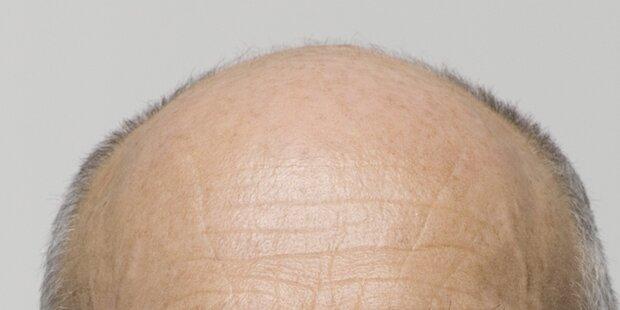Das hilft bei Haarausfall