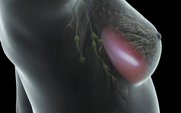 Welche Risiken Brustimplantate wirklich bergen