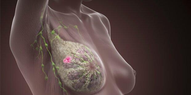 Leben mit der Diagnose metastasierter Brustkrebs