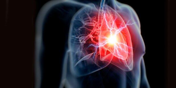 Diese Übung soll das Herzinfarktrisiko aufdecken