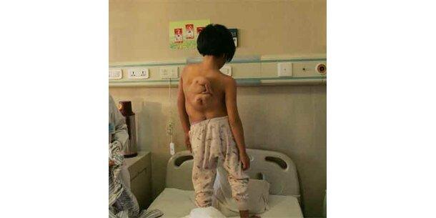 Mädchen mit drei Armen wird in China operiert