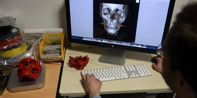 Gesicht mit 3D-Drucker wieder hergestellt