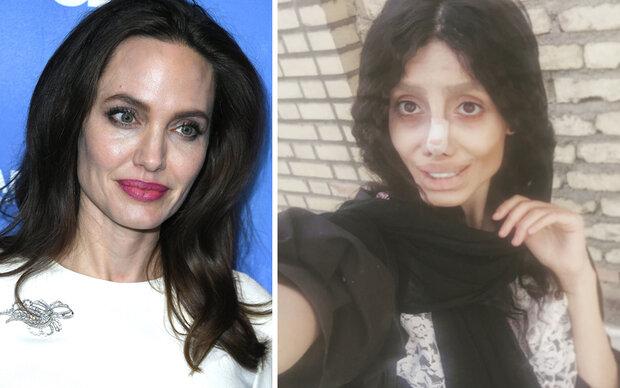 50 Schönheits-OPs für den Jolie-Look