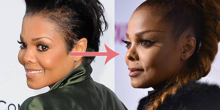 Hat Janet Jackson bald keine Nase mehr?