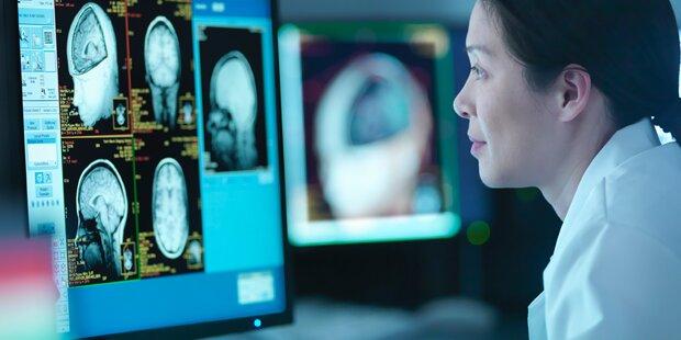 Zweifel an Ergebnissen aus Hirnscan-Studien