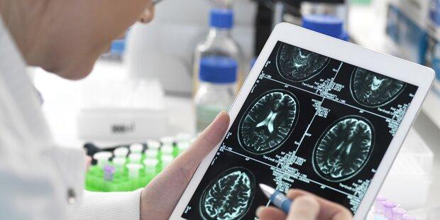 Forschung setzt auf neuen Impstoff gegen Alzheimer