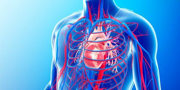 Neue Theorie für die Entstehung der Arterienverkalkung