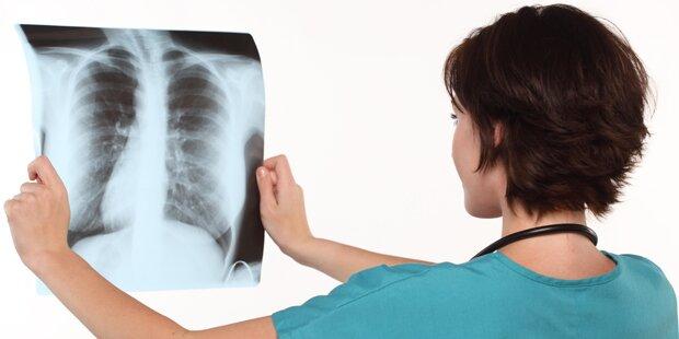Zahl der Tuberkulosefälle in Österreich zurückgegangen