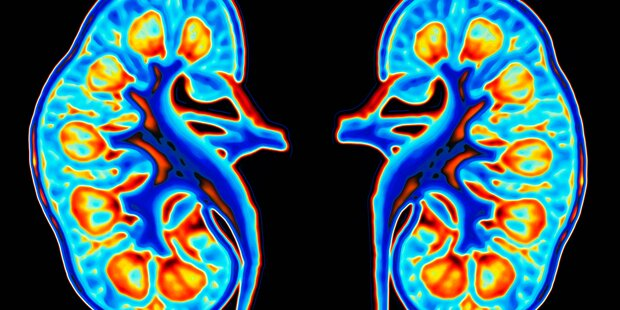 Niereninsuffizienz: Früherkennung immer wichtiger