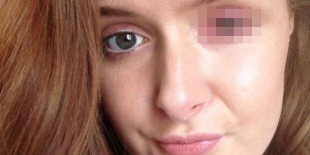 Dieses Bild zeigt wie gefährlich Kontaktlinsen wirklich sind