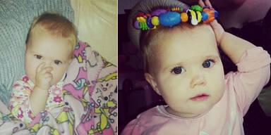 Schwere Meningitis: Baby verliert Gliedmaßen