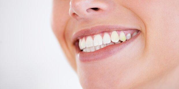 Karies: Nicht nur Zähneputzen entscheidend