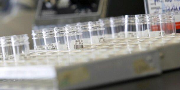 Österreich in Angst vor Super-Bakterien